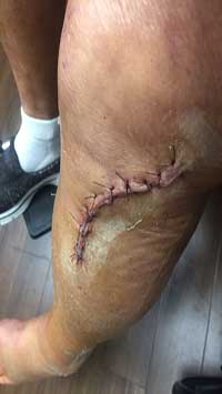Wound Care Scar