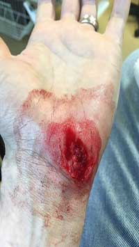 Wound Care For Hand